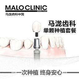 【海南@海南马泷乐康医疗管理有限公司】牙齿治疗