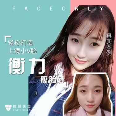 【北京@唯颜医疗美容诊所】瘦脸针