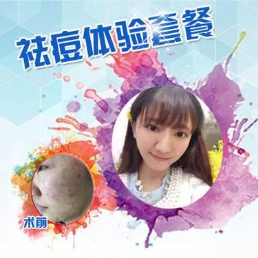 【福州@福州东南眼科医院医疗美容科  】祛痘套餐