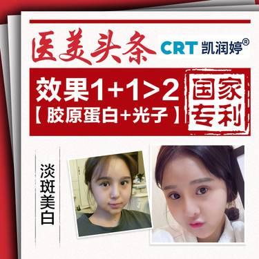 【北京@北京凯润婷(原史三八)医疗美容医院】光子嫩肤