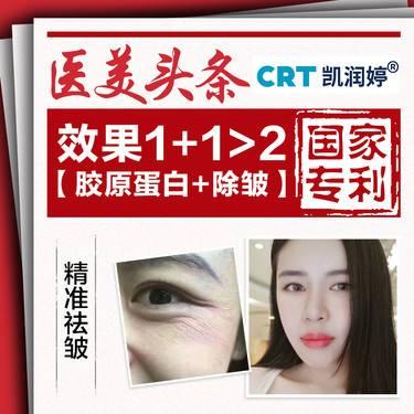 【北京@北京凯润婷(原史三八)医疗美容医院】肉毒素除皱