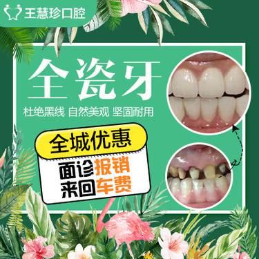 【上海@上海市松江区王慧珍口腔诊所】全瓷牙