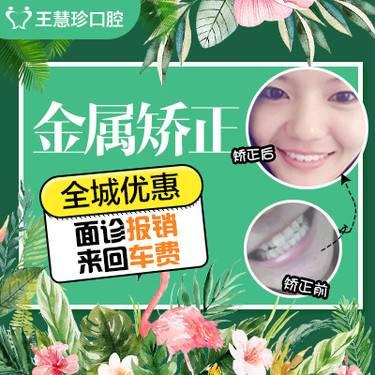 【上海@上海市松江区王慧珍口腔诊所】金属牙齿矫正