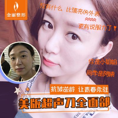 超声刀【深圳@深圳金丽医疗美容】