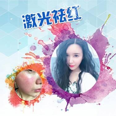 【福州@福州东南眼科医院医疗美容科  】激光祛红血丝