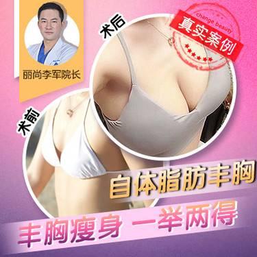 【广州@李军】自体脂肪隆胸
