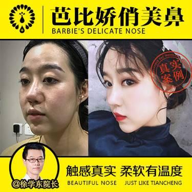 http://hera.s.igengmei.com/service/2018/11/30/8c3b9ffe4c-half