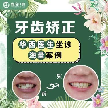 【成都@谭璐媛】牙齿矫正